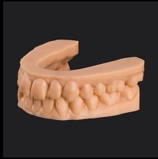 3D printmateriaal orthodontiemodellen